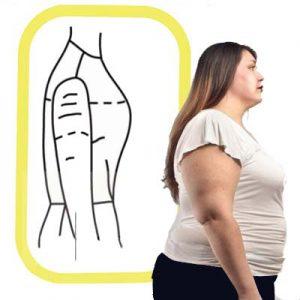 الگوی بازوی چاق